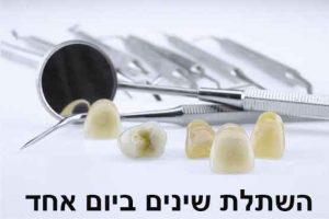 מדוע עדיף לעשות השתלת שיניים ביום אחד